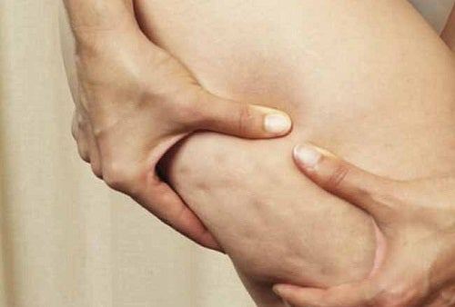 La cellulite du corps