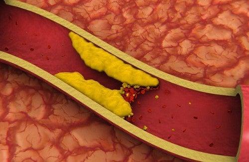 Des jus pour réduire votre taux de cholestérol