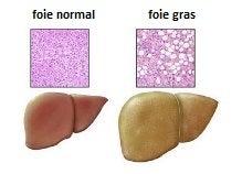 Les symptôme du foie trop gras.
