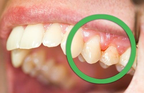 Comment traiter la gingivite de manière naturelle ?
