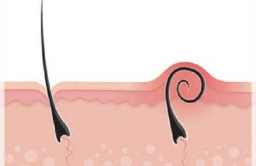 5 conseils pour éliminer les poils incarnés sans douleur