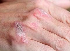 Les nouvelles préparations médicinales selon le traitement du psoriasis