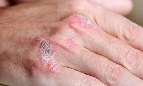 Comme guérir et où le psoriasis