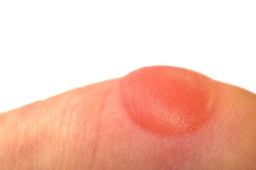Gelatina un pacco di faccia con carbonio assorbente