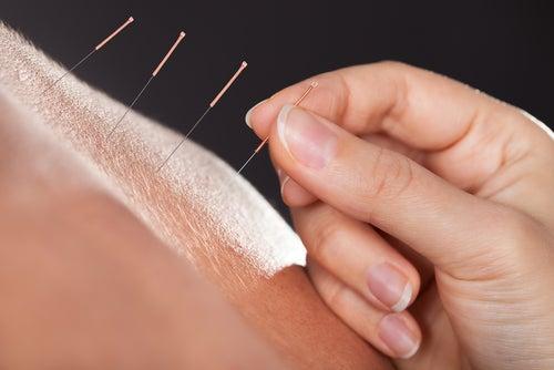 l'acunpuncture pour la ménopause