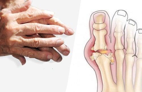 Recommandations pour soulager l'arthrite