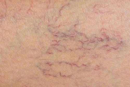 Esercizi per gambe a una malattia di vene