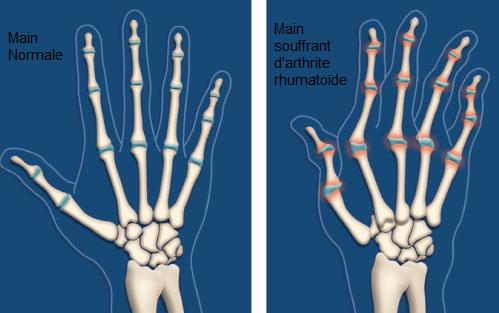 Arthrite rhumatoide