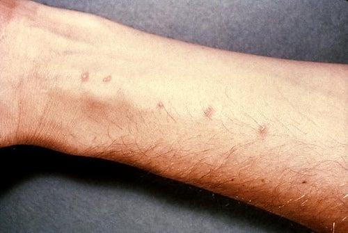 traitement maison pour soigner la dermatite