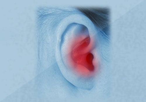 Douleurs aux oreilles