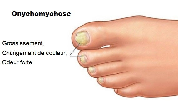 Onychomycose : quand les mycoses affectent les ongles