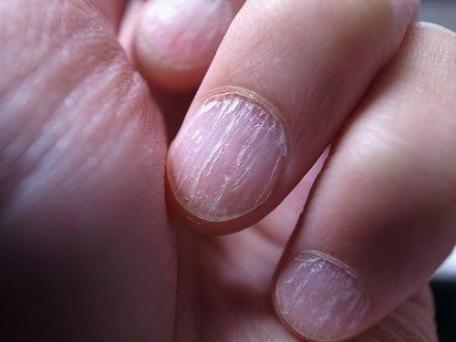 Soigner les mycoses des ongles.