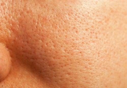 Conseils pour resserrer naturellement les pores