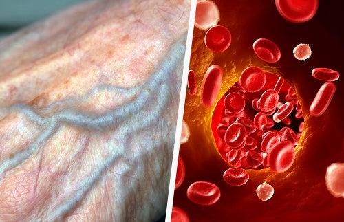 Conseils naturels pour améliorer la circulation sanguine