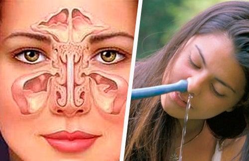 Wash-nasal-against-the-sinusitis