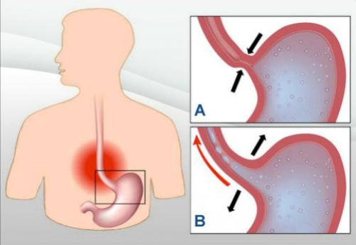 douleur estomac reflux gastrique