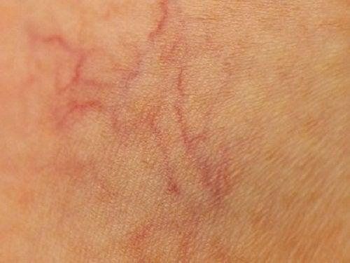 Araignées vasculaires : 9 conseils pour les éviter