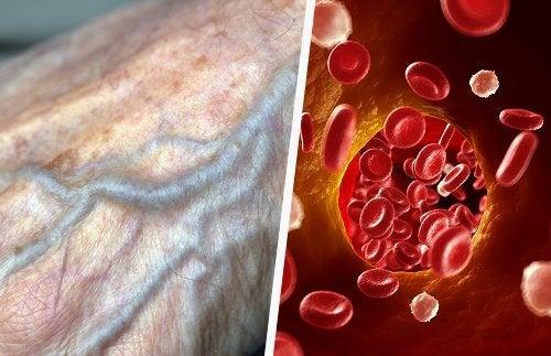 4 conseils pour améliorer la circulation sanguine