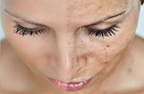 5 causes du vieillissement prématuré