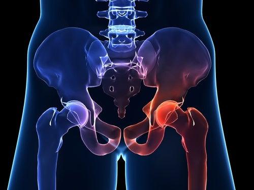 Symptômes et prévention de l'arthrose de hanche