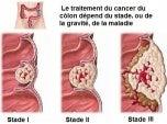 Cancer-du-coÌ'lon – Copie