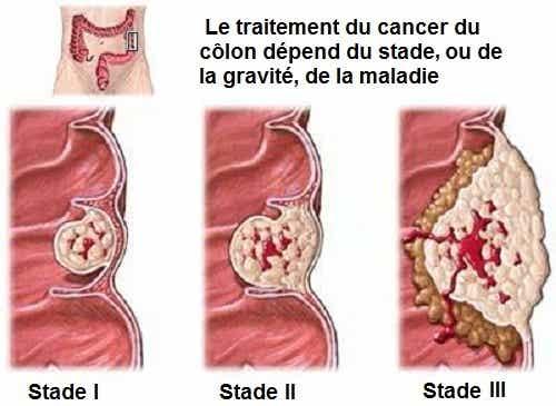 Ce que vous devez savoir sur le cancer du côlon