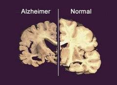 Cerveau-avec-alzheimer-et-sain