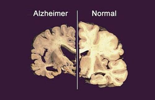 Alzheimer serait lié au manque de sommeil