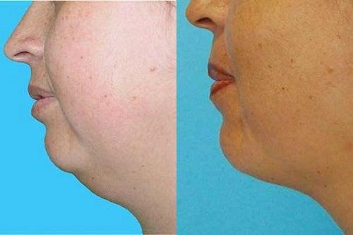 Eliminez votre double menton naturellement et sans chirurgie