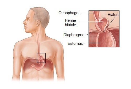 Des remèdes naturels pour traiter une hernie hiatale