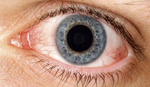 Remèdes naturels pour la sécheresse des yeux