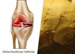 Traiter-l'arthrose-naturellement