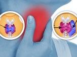 Anomalies-de-la-thyroïde