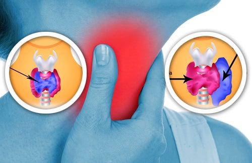 Comment détecter à temps les anomalies de la thyroïde ?