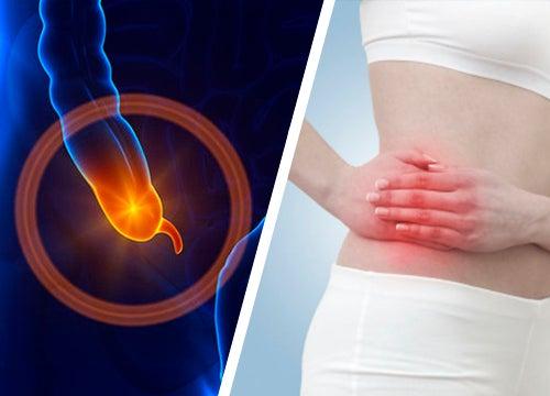 Découvrez les symptômes de l'appendicite