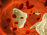 Cholestérol-dans-le-sang