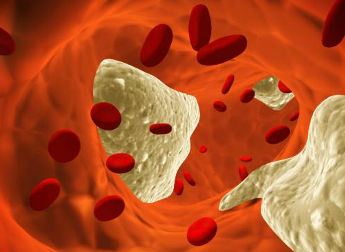 7 mythes sur le cholestérol