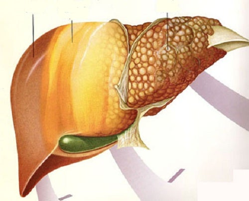 Les meilleurs fruits contre la maladie du foie gras