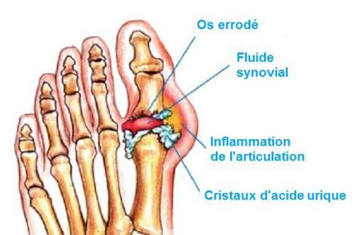Comment éliminer naturellement les cristaux d'acide urique dans les articulations ?