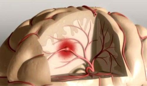conséquences du manque de sommeil sur le cerveau