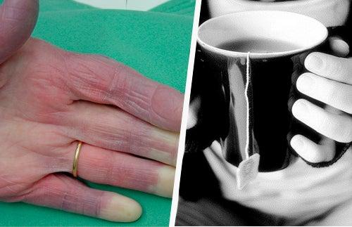 Vous avez les mains froides ? Découvrez pourquoi !