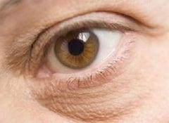 Poches-sous-les-yeux