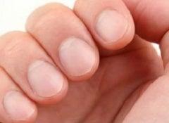 Problèmes-avec-les-ongles