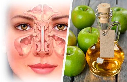 Remèdes maison pour décongestionner les sinus paranasaux