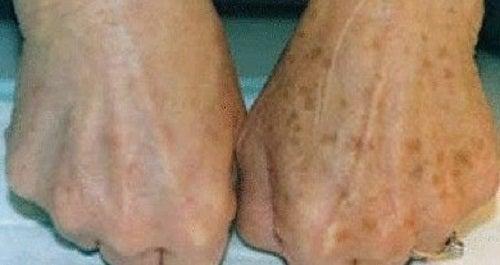 Les souillures sur la peau de la personne de la photo et la raison