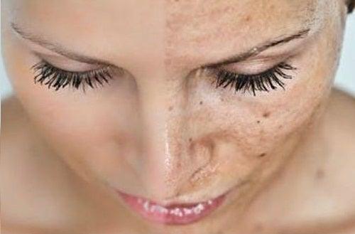 conséquence du manque de sommeil, la santé de la peau