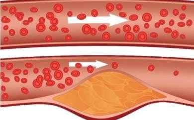 Mythes sur le cholestérol courants.