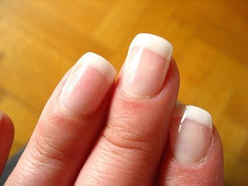 Les ongles et la santé : les ongles décolorés sont un signe de dysfonctionnement.