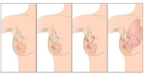 Les causes principales du cancer du sein qu'il faut connaître