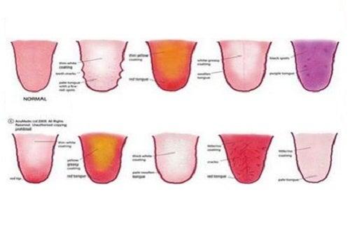 La couleur de la langue révèle votre état émotionnel et de santé